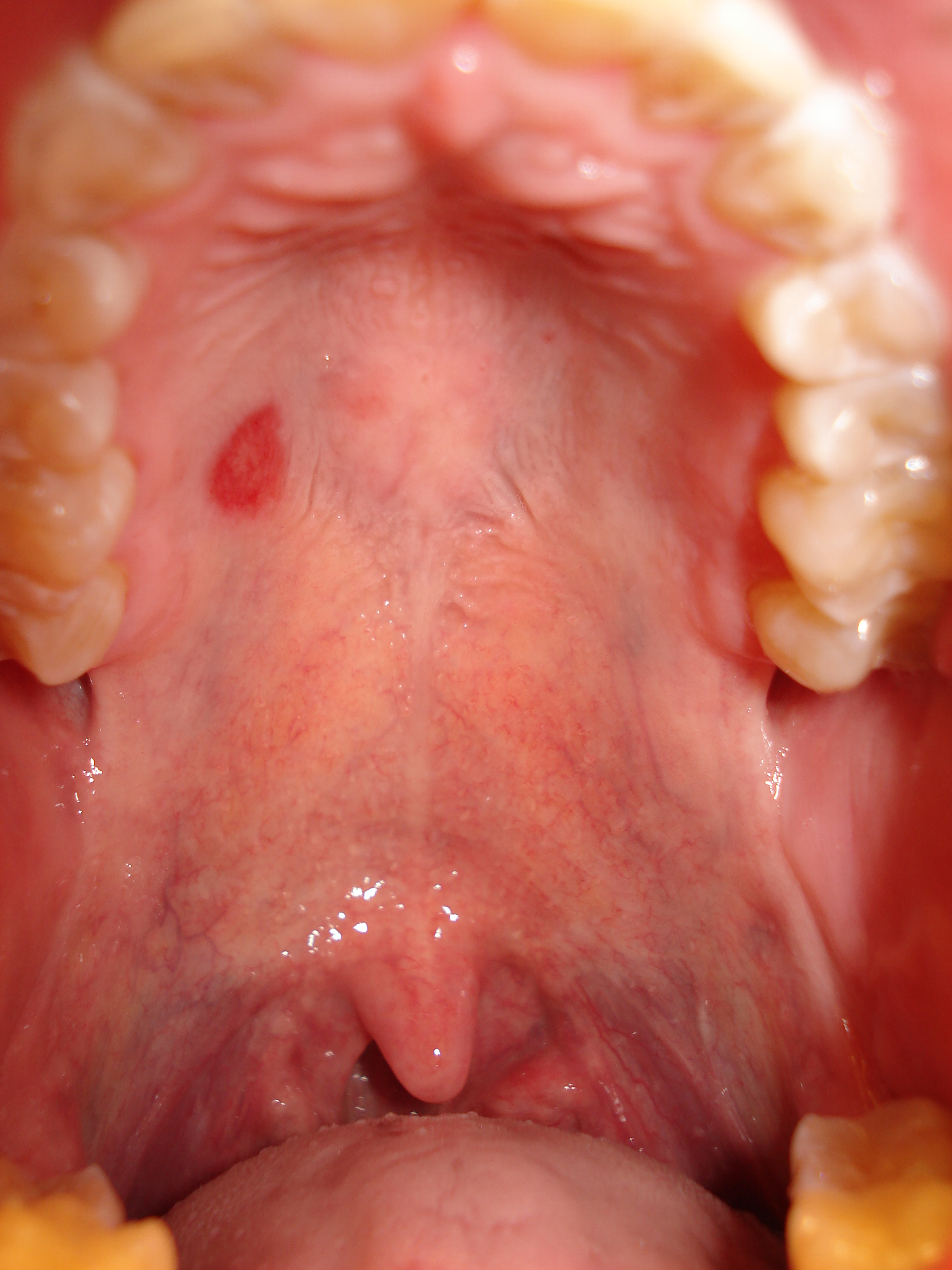 Red spots on roof of the mouth